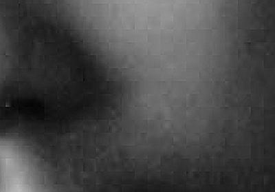 鼻周辺の拡大
